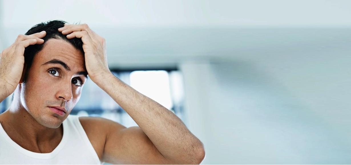 Le 4 più importanti patologie del cuoio capelluto ...