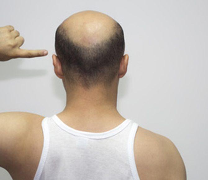 alopecia-0