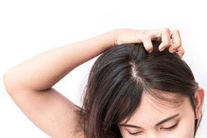 alopecia-11