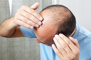 alopecia-12