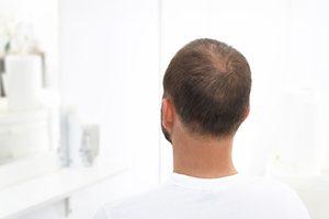 alopecia-9