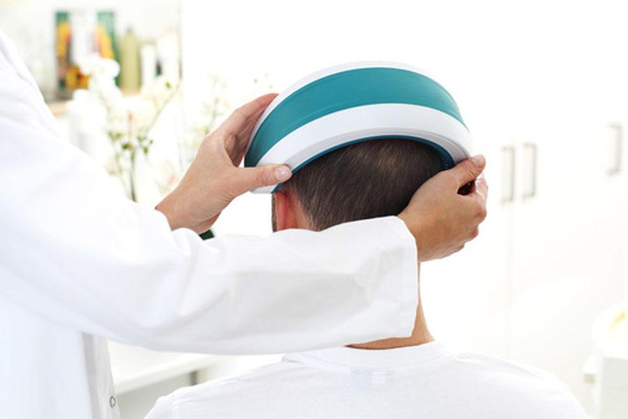 terapia laser capelli