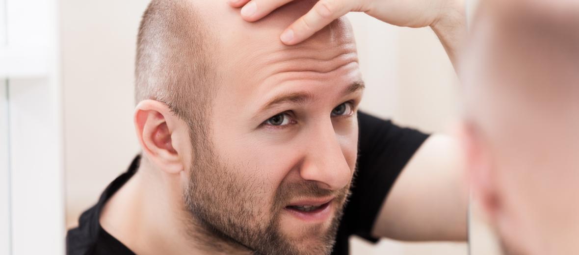 È sempre possibile fare un trapianto di capelli