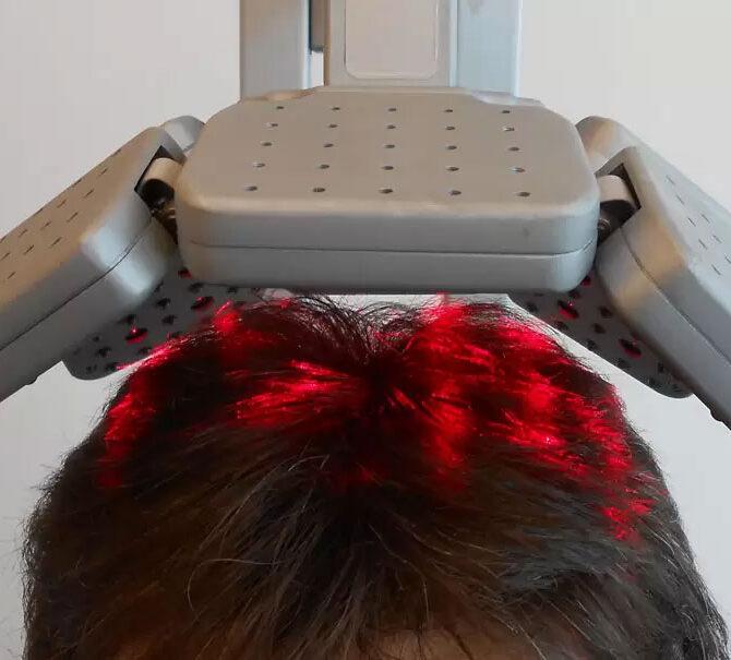 Contrastare la caduta dei capelli con la laser terapia